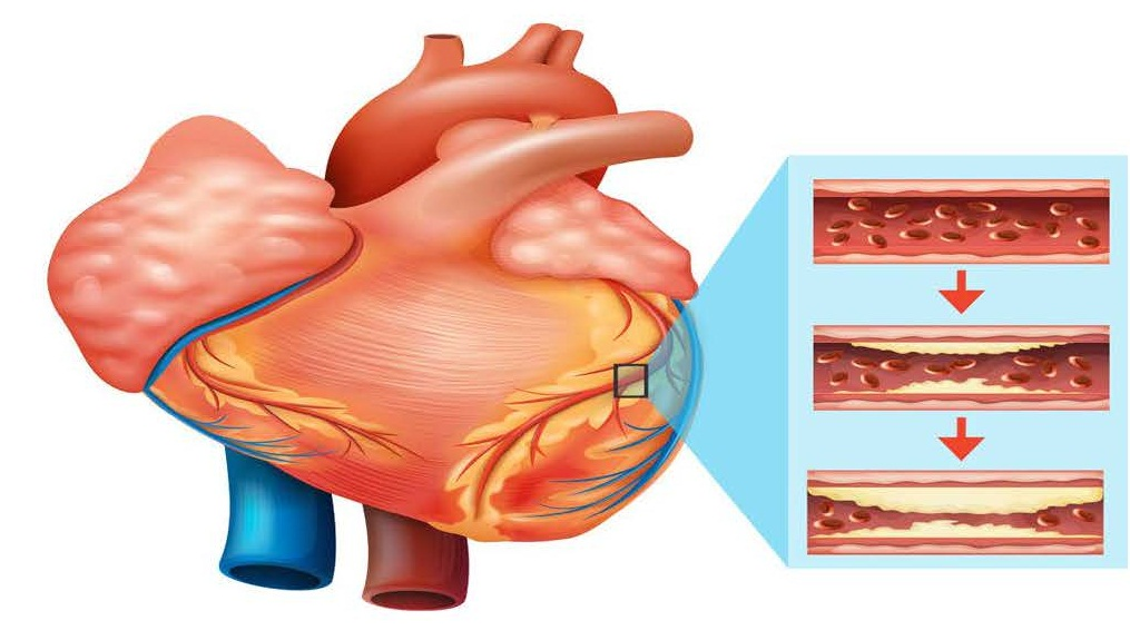 Myocardial Infarction (MI) also known as Heart Attack