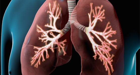 COPD (Chronic Constructive Pulmonary Disease)