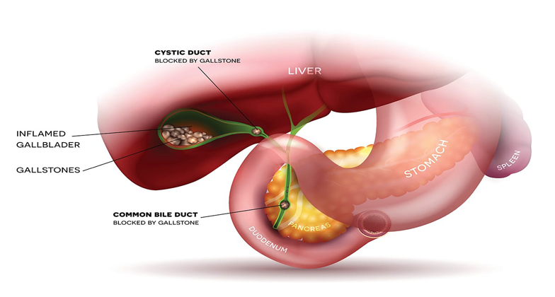 What are gallstones?