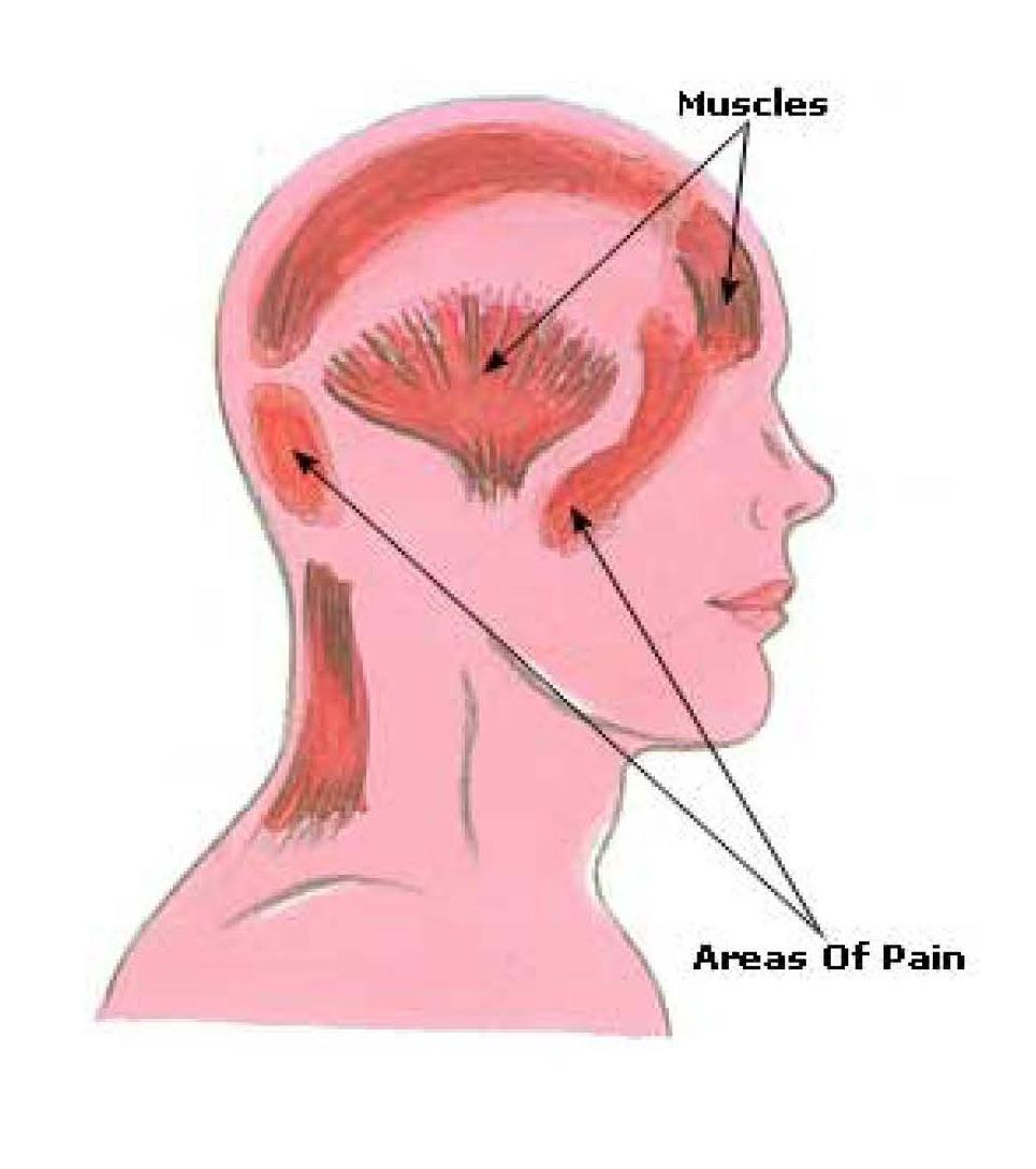 What is Tension Headache